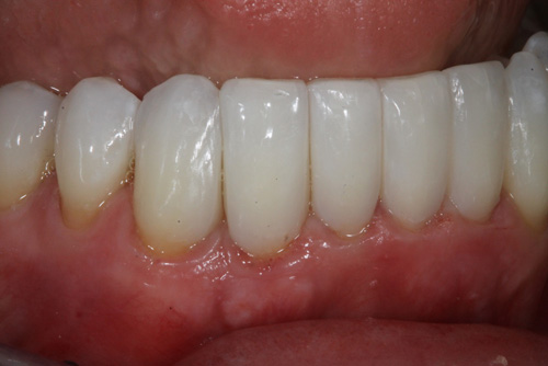 after Bioclear for diastema in Downtown Seattle