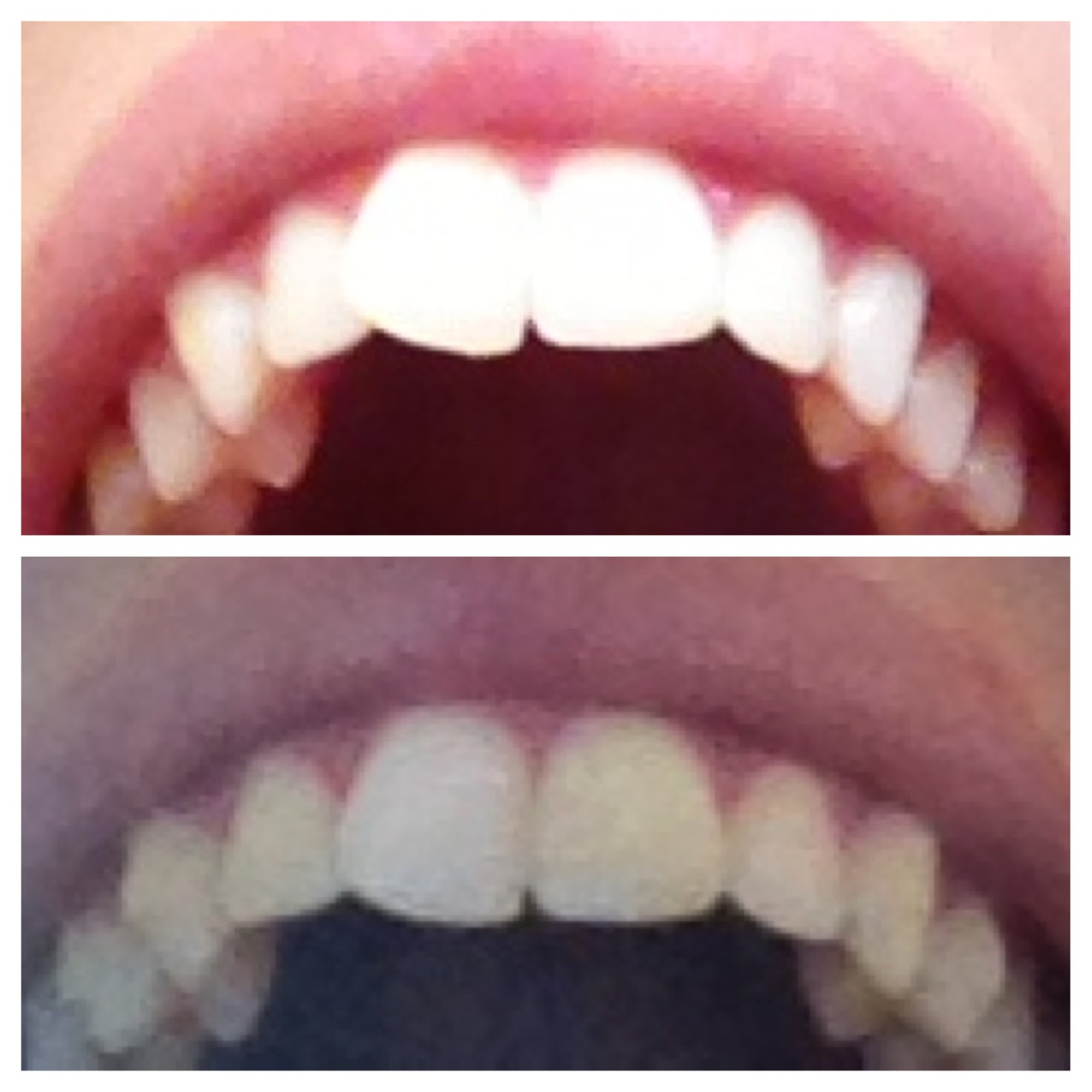 Crooked front tooth options